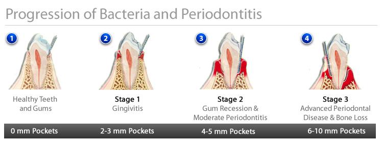 hendersonville family dentistry